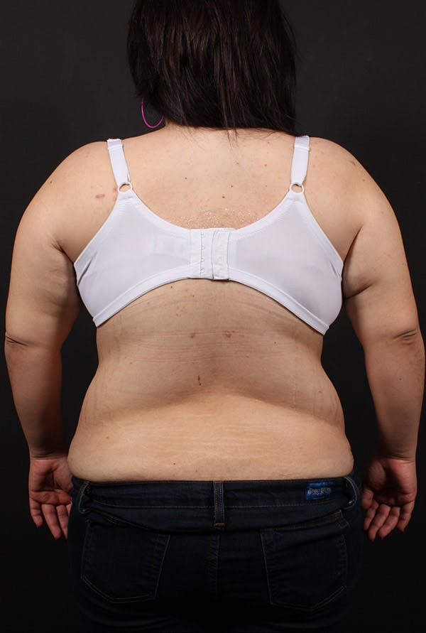 Liposuction Gallery - Patient 14089817 - Image 4