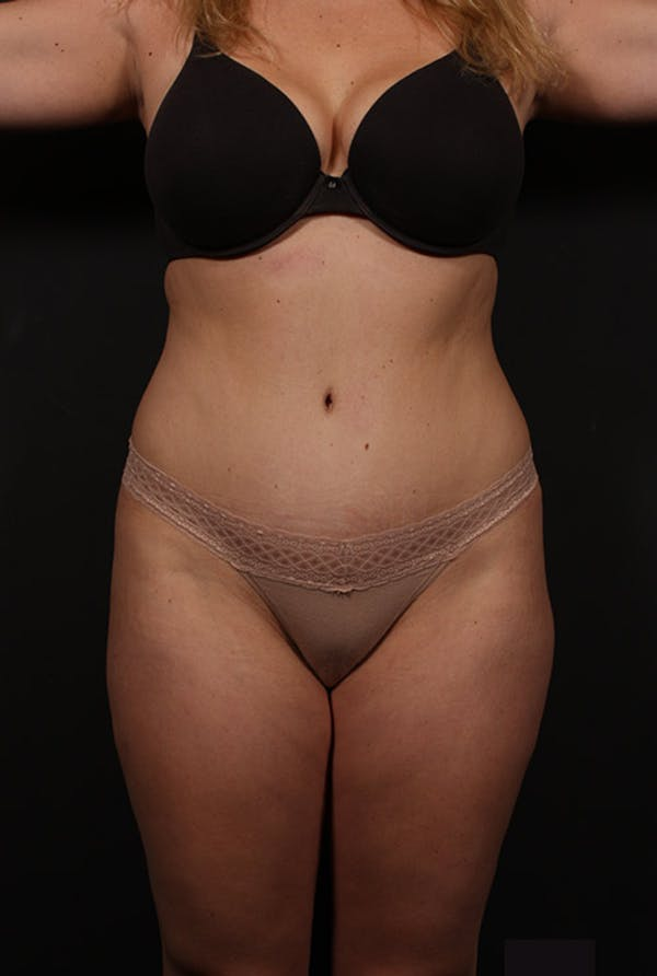Liposuction Gallery - Patient 14089847 - Image 3
