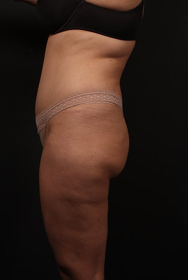 Liposuction Gallery - Patient 14089847 - Image 5