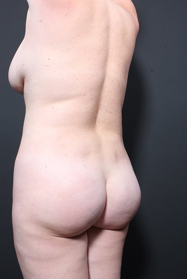 Liposuction Gallery - Patient 14089847 - Image 7