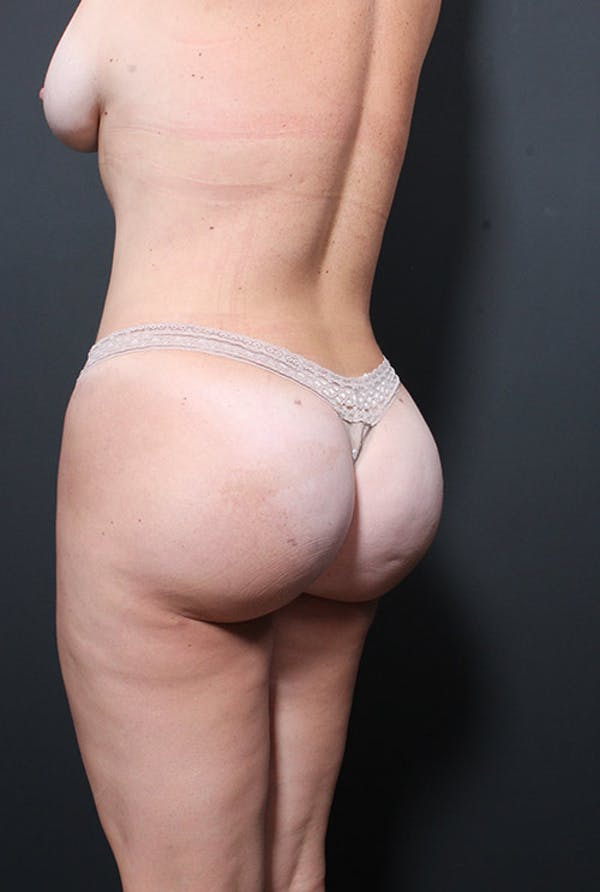 Liposuction Gallery - Patient 14089847 - Image 8