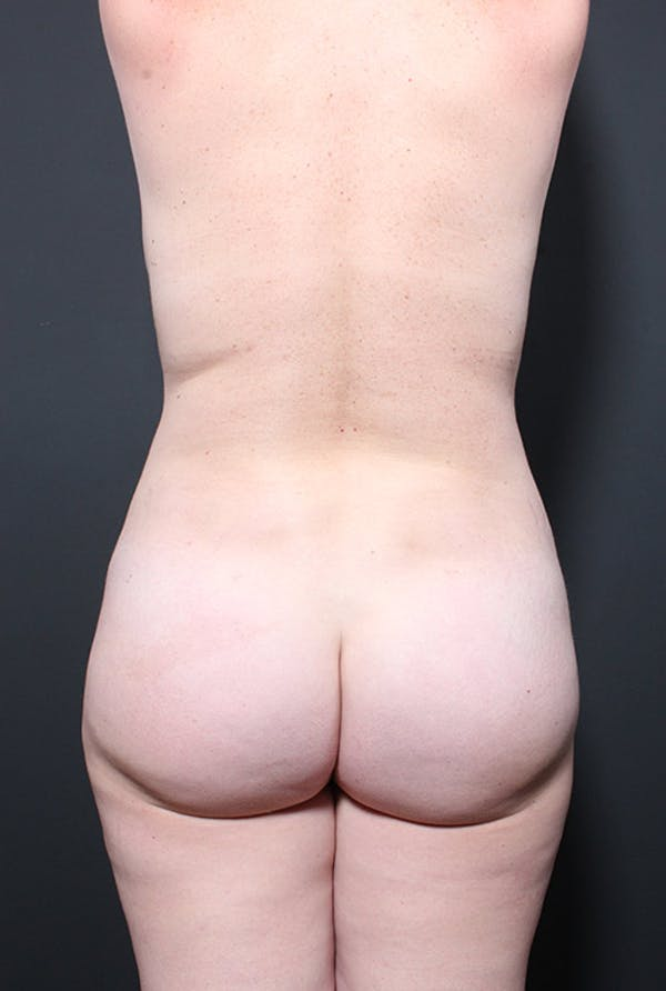 Liposuction Gallery - Patient 14089847 - Image 9