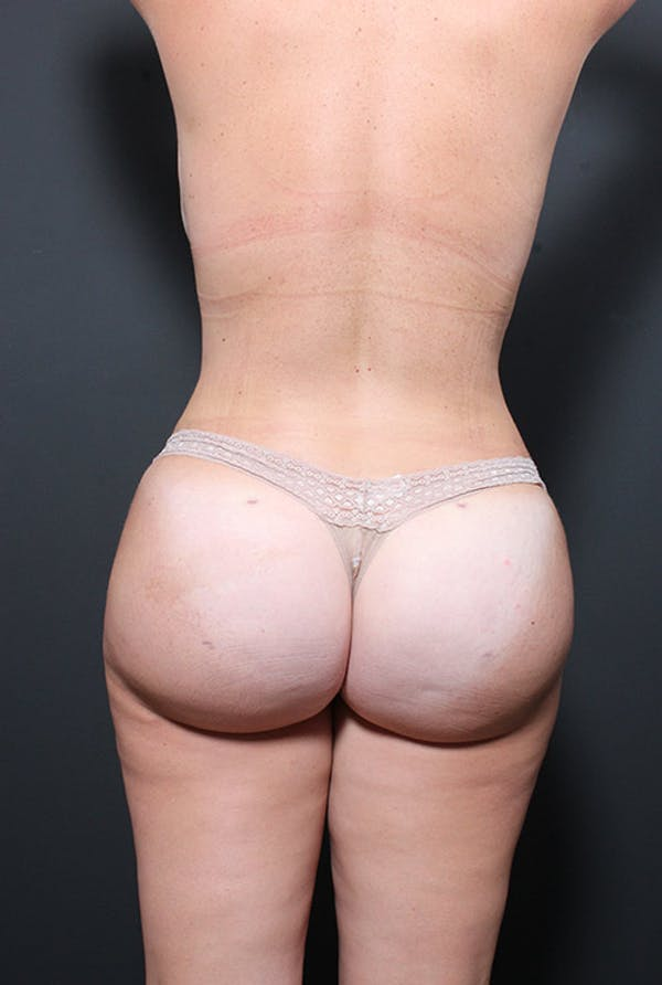 Liposuction Gallery - Patient 14089847 - Image 10
