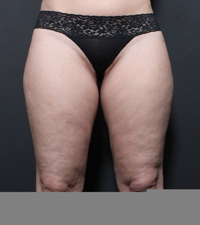 Liposuction Gallery - Patient 14089849 - Image 1