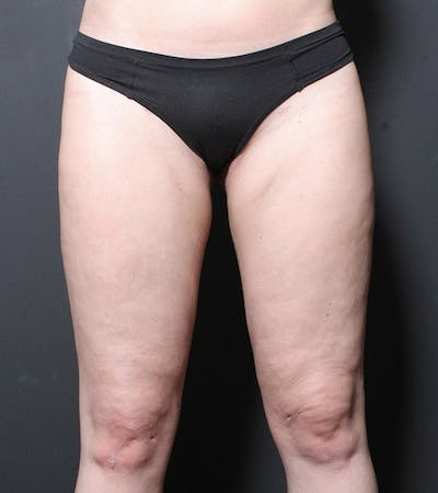Liposuction Gallery - Patient 14089849 - Image 2