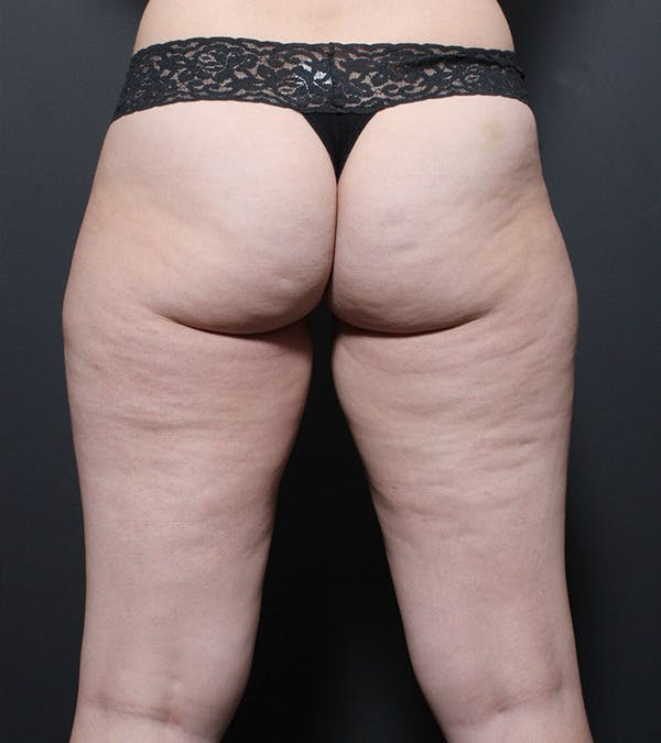Liposuction Gallery - Patient 14089849 - Image 3