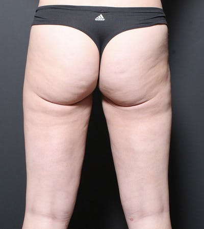 Liposuction Gallery - Patient 14089849 - Image 4