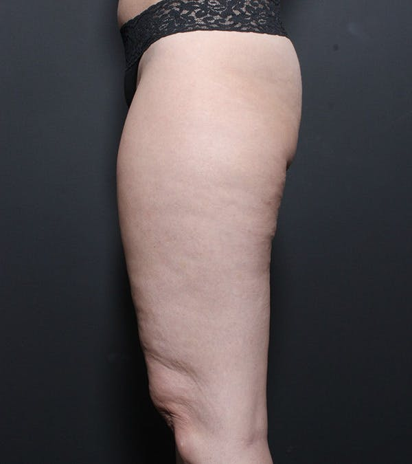 Liposuction Gallery - Patient 14089849 - Image 5