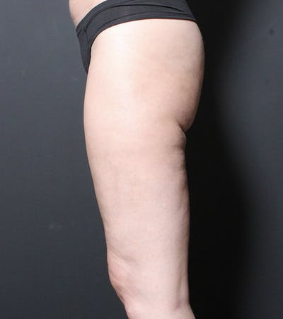 Liposuction Gallery - Patient 14089849 - Image 6