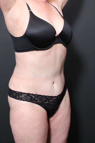 Liposuction Gallery - Patient 14089872 - Image 2