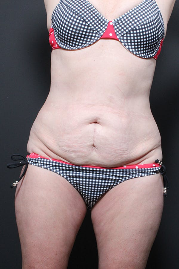 Liposuction Gallery - Patient 14089872 - Image 3
