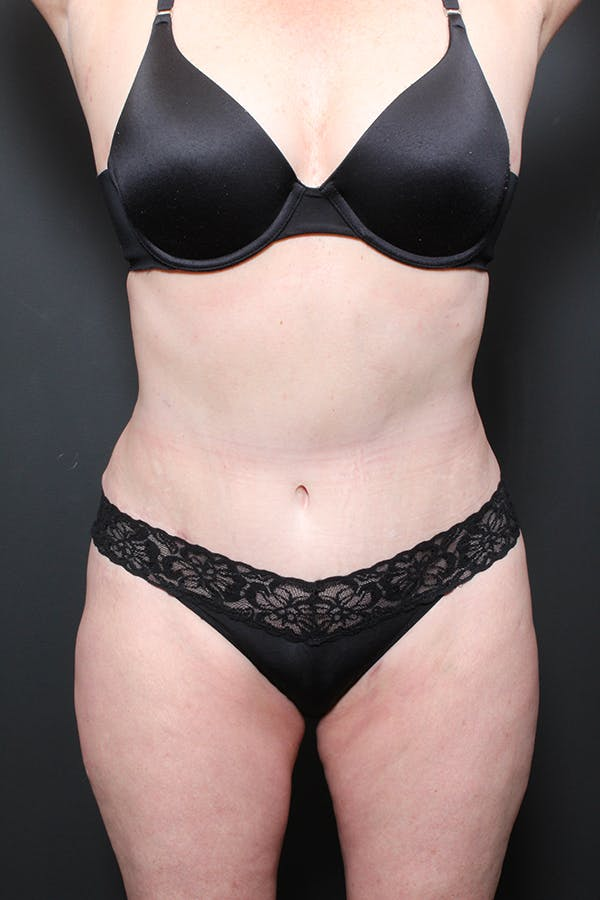 Liposuction Gallery - Patient 14089872 - Image 4