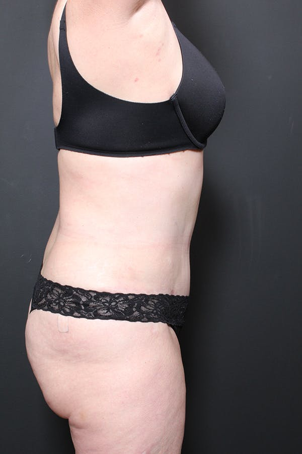 Liposuction Gallery - Patient 14089872 - Image 6
