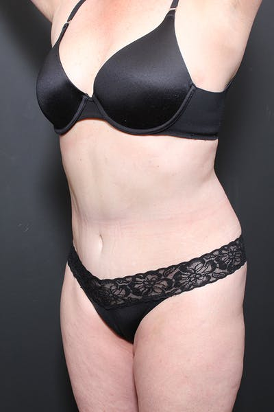 Liposuction Gallery - Patient 14089872 - Image 8