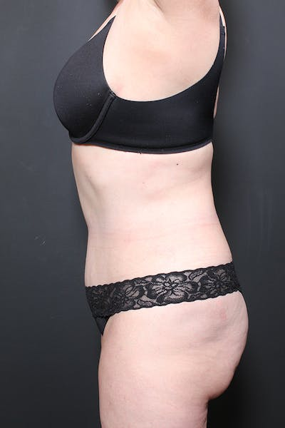 Liposuction Gallery - Patient 14089872 - Image 10
