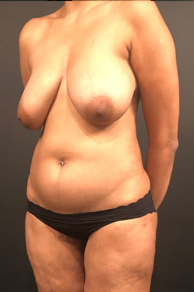 Liposuction Gallery - Patient 14089873 - Image 1
