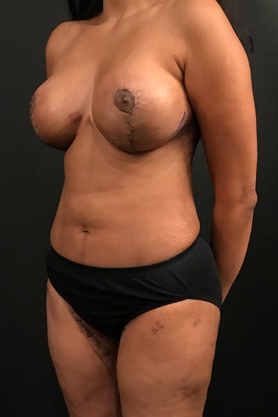 Liposuction Gallery - Patient 14089873 - Image 2