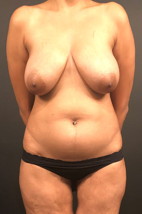 Liposuction Gallery - Patient 14089873 - Image 3
