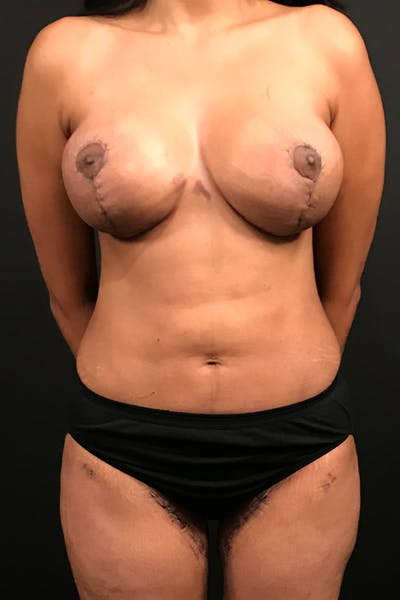 Liposuction Gallery - Patient 14089873 - Image 4