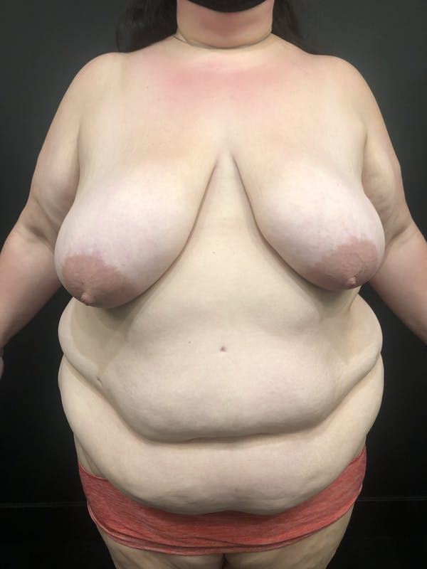 Breast Reduction Gallery - Patient 17337151 - Image 3