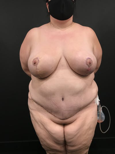 Breast Reduction Gallery - Patient 17337151 - Image 4