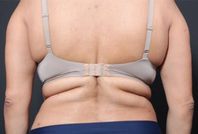 Bra Line Back Lift Gallery - Patient 19827720 - Image 1