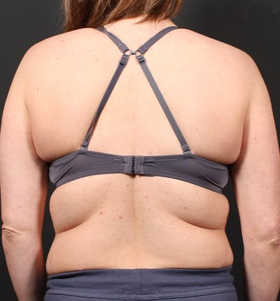 Bra Line Back Lift Gallery - Patient 19827724 - Image 1
