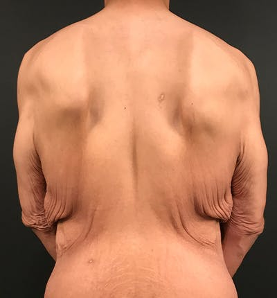 Bro Line Back Lift Gallery - Patient 19829433 - Image 1