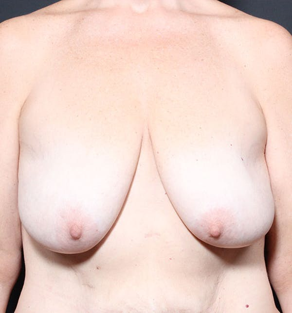 Breast Lift Mastopexy Gallery - Patient 14089659 - Image 3
