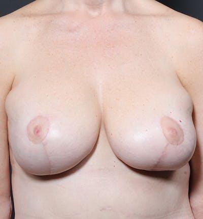 Breast Lift Mastopexy Gallery - Patient 14089659 - Image 4