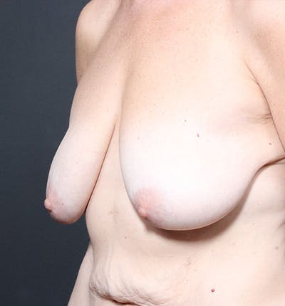Breast Lift Mastopexy Gallery - Patient 14089659 - Image 1