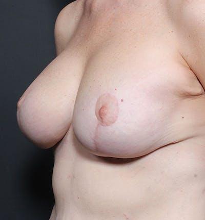 Breast Lift Mastopexy Gallery - Patient 14089659 - Image 2