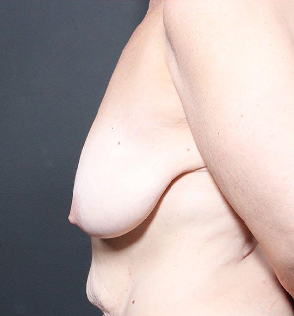 Breast Lift Mastopexy Gallery - Patient 14089659 - Image 5