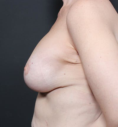 Breast Lift Mastopexy Gallery - Patient 14089659 - Image 6