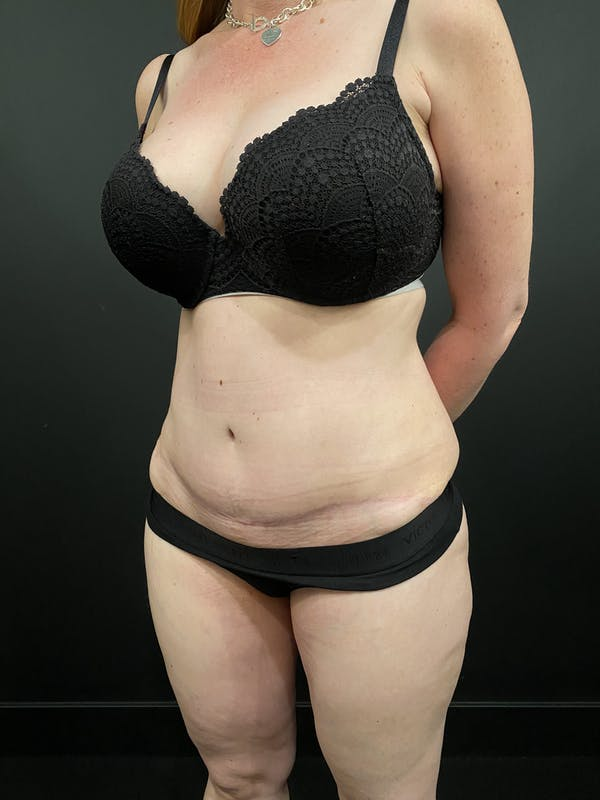 Tummy Tuck Gallery - Patient 20536490 - Image 2