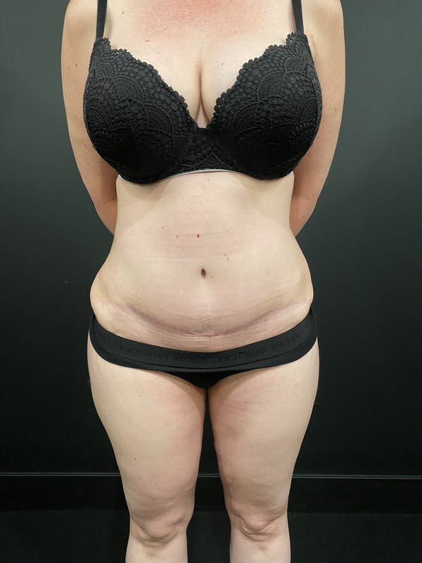 Tummy Tuck Gallery - Patient 20536490 - Image 4