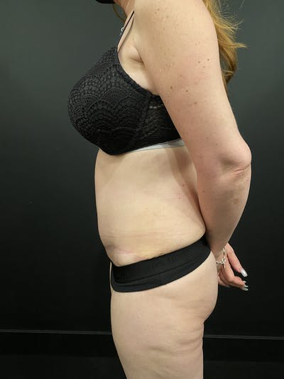 Tummy Tuck Gallery - Patient 20536490 - Image 6