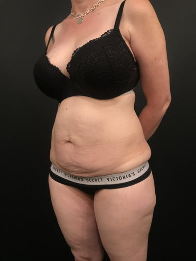 Tummy Tuck Gallery - Patient 20536490 - Image 1