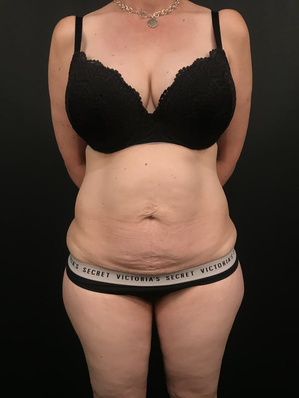 Tummy Tuck Gallery - Patient 20536490 - Image 3