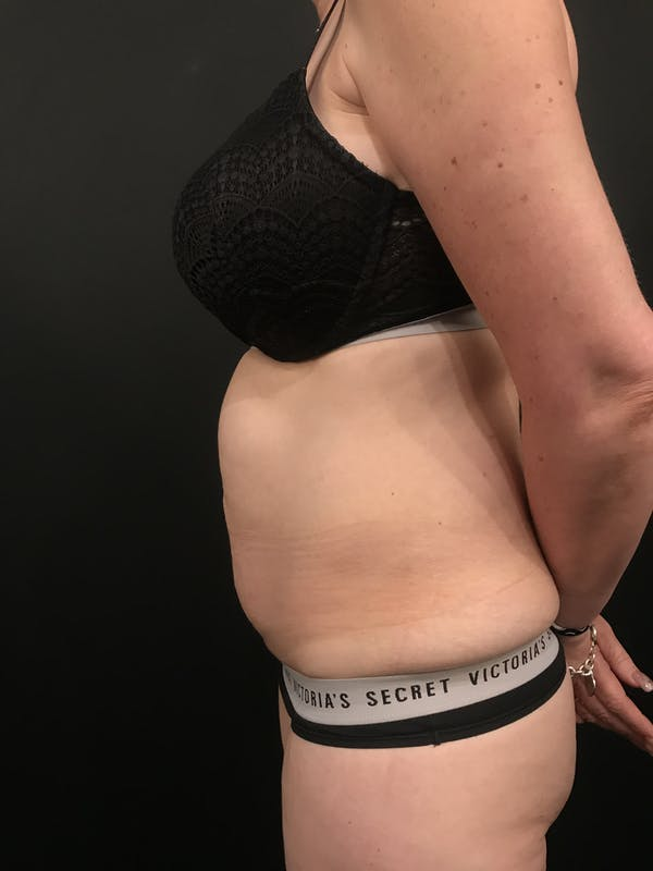 Tummy Tuck Gallery - Patient 20536490 - Image 5