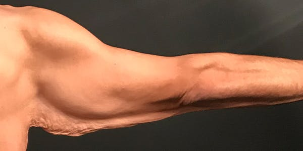 Arm Lift Gallery - Patient 20542052 - Image 1