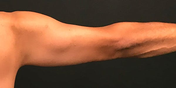 Arm Lift Gallery - Patient 20542052 - Image 2