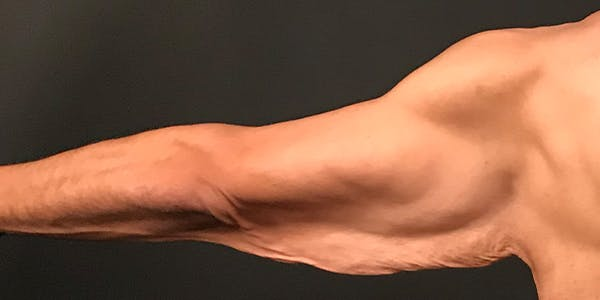 Arm Lift Gallery - Patient 20542052 - Image 3