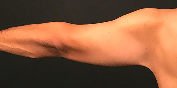 Arm Lift Gallery - Patient 20542052 - Image 4