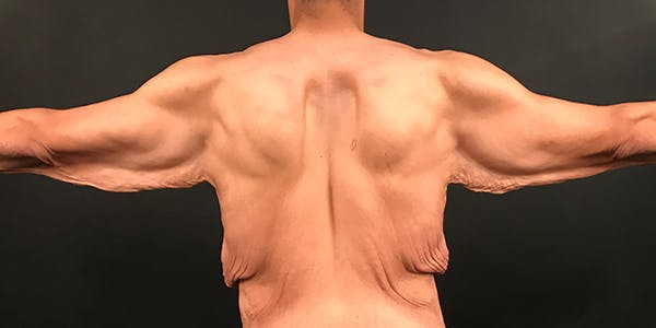 Arm Lift Gallery - Patient 20542052 - Image 5