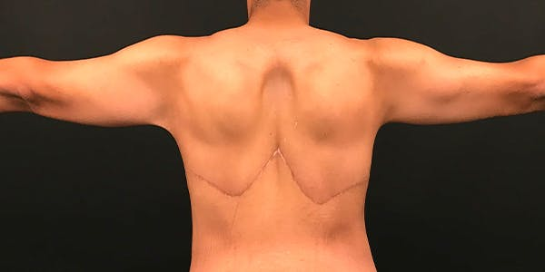Arm Lift Gallery - Patient 20542052 - Image 6