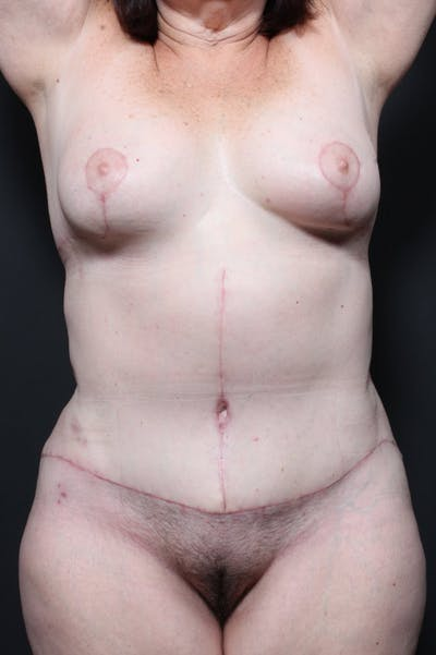 Tummy Tuck Gallery - Patient 20543185 - Image 2