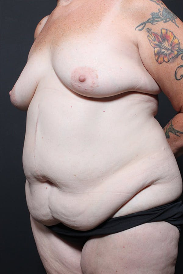 Tummy Tuck Gallery - Patient 20543185 - Image 3