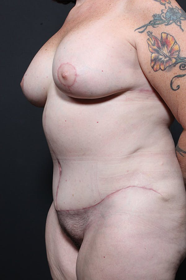 Tummy Tuck Gallery - Patient 20543185 - Image 4