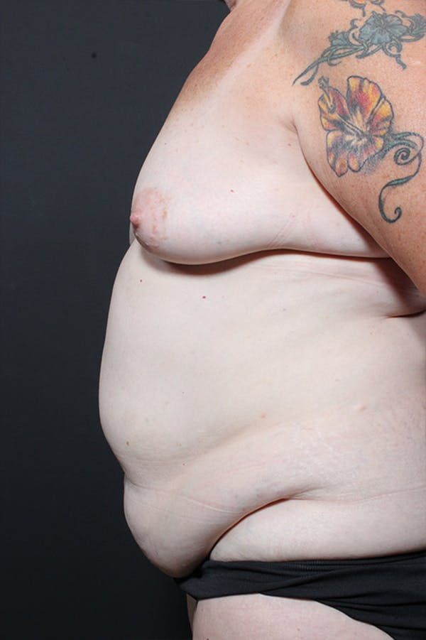 Tummy Tuck Gallery - Patient 20543185 - Image 5